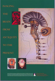 Imaging The Brain From Antiquity To The Present Poster - Norman ...